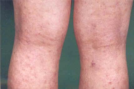 Posto su un eczema di gamba